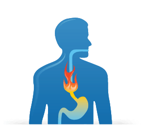 Homeopathy for Heartburn Lotus Homeopathy Tunbridge Wells, Kent